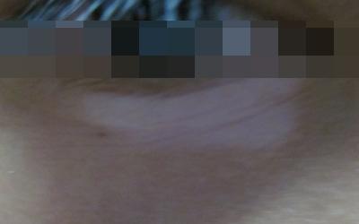 眼睫毛变白手上脚上有白斑是白癜风吗