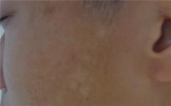 小孩子脸上有白斑一年了是什么类型