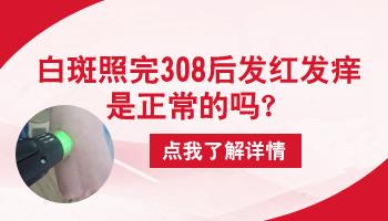 308激光照白癜风发红发痒正常吗