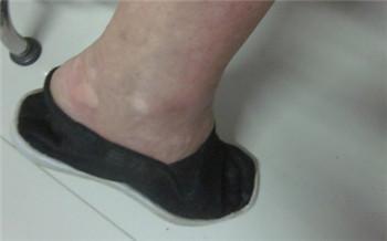 脚上有白点的图片