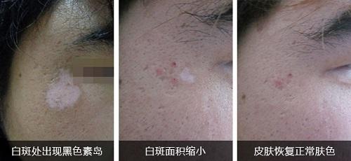 夏天白癜风照308白斑起泡影响治疗吗