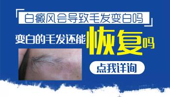 白癜风导致的眉毛都白了能恢复吗