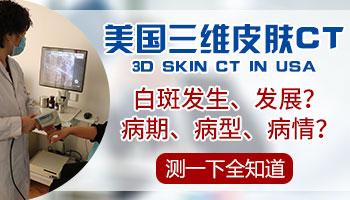 哪个白癜风医院能做美国三维皮肤CT