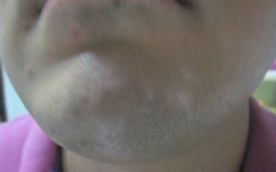 下巴上瓷白色的白斑两个月了是白癜风吗