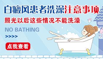 做完308紫外线光疗可以洗澡吗