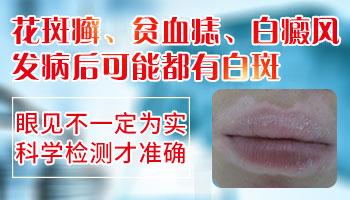各类皮肤病与白癜风区别图片